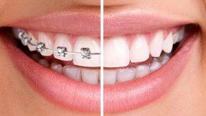 DAMON system stomatoloska ortodoncija