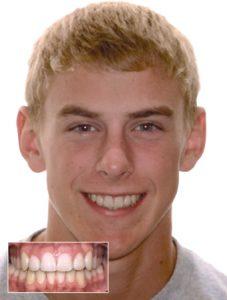 DAMON novi sistem lecenje zuba