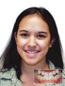 DAMON sistem ortodoncija